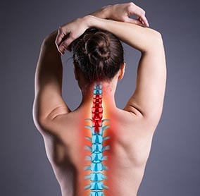 Woman with back injury, photo with highlighted skeleton.